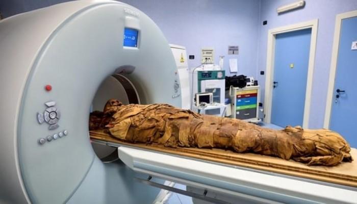 مستشفى إيطالي يستخدم الأشعة المقطعية لكشف أسرار مومياء مصرية