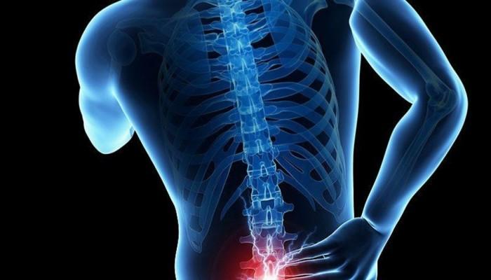 لتخفيف آلام الظهر وتحسين وضعية الجسم.. إليك هذه التمارين
